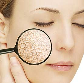 skin types dry